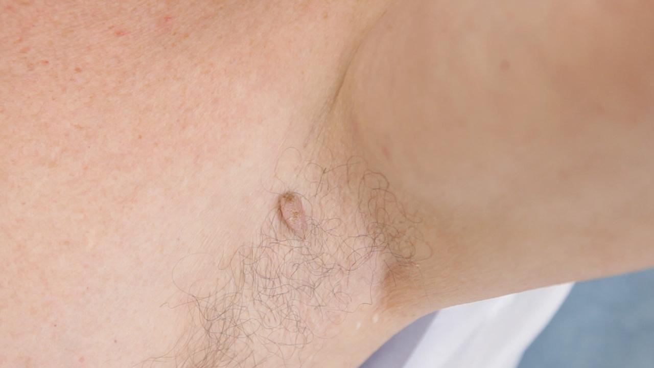 Skin Tag Removal Laser Skin