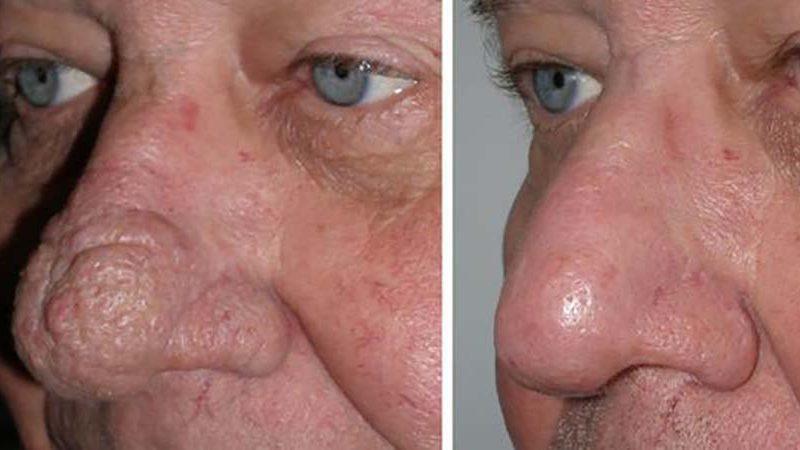 Rhinophyma Laser Skin